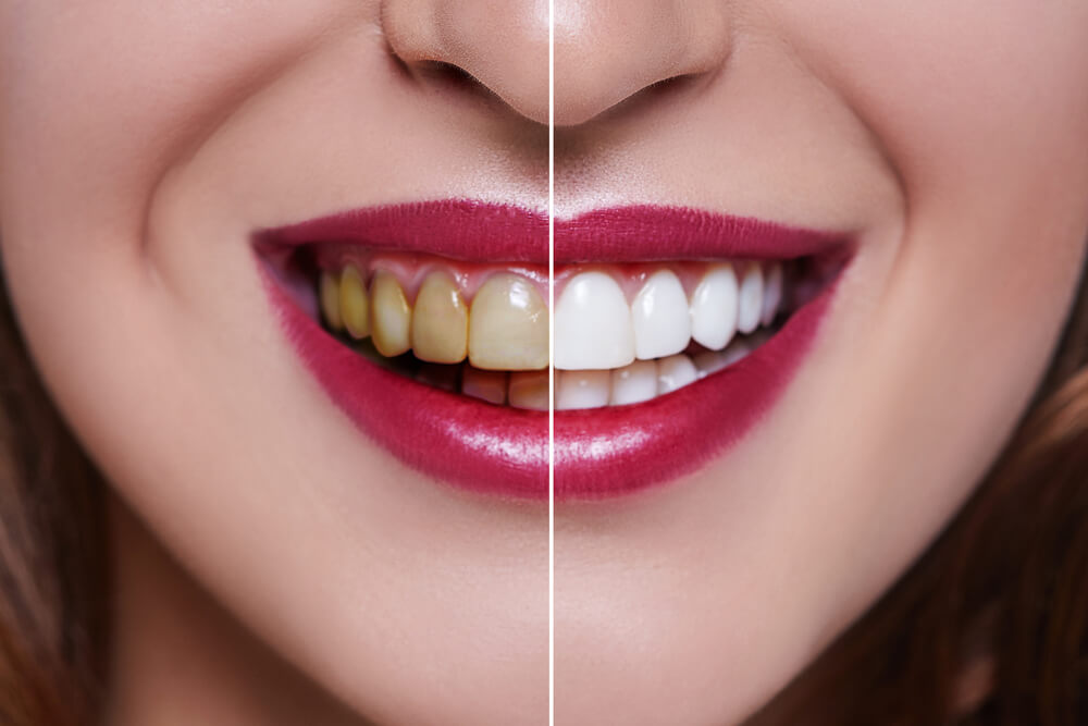 Bleaching and whitening inner 1 showing the concept of Bleaching & Whitening