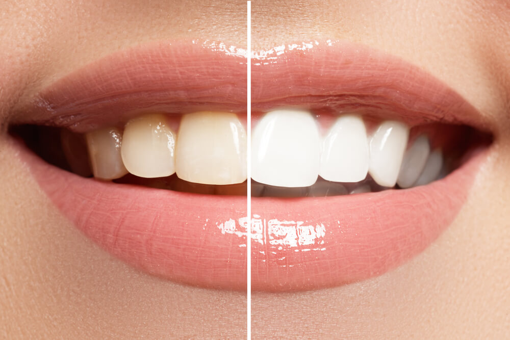 Cosmetic and Aesthetic Dentsitry inner showing the concept of Aesthetics & Cosmetic Surgery