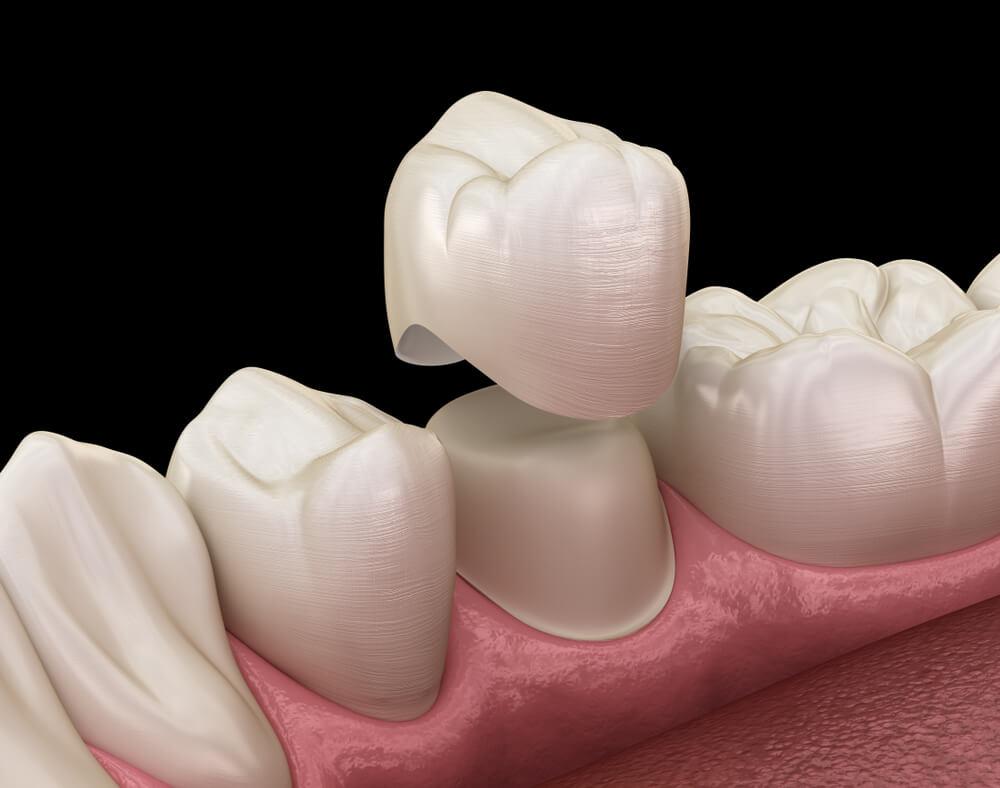 Dental Restorations inner showing the concept of Dental Restorations