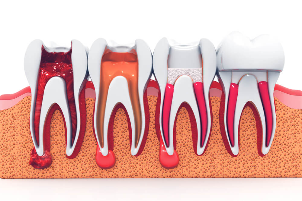 Root Canal Treatment inner showing the concept of Root Canal Treatment & Endodontics